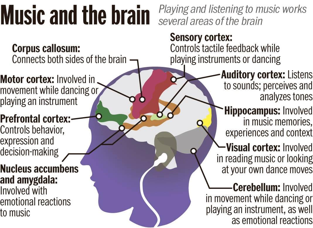 brain on music 1
